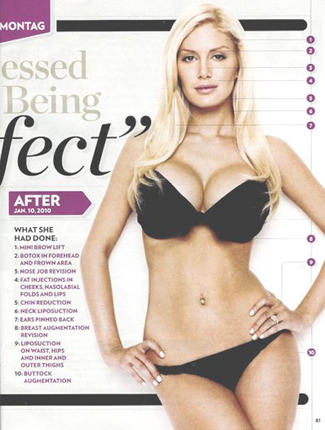 "Heidi Montag's ""After"""